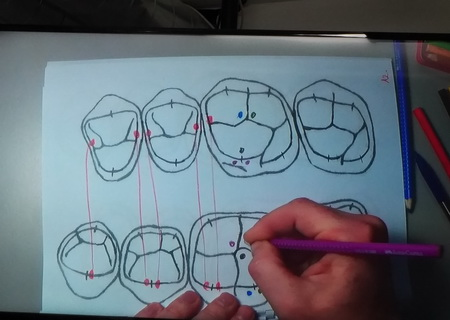 occlusion courses uk